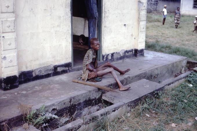 En kvinne fotografert under hungersnøden i Biafra på 1960-tallet